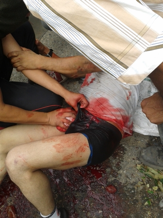 Image of one of those wounded by a bullet in Castilla, Coyaima, Tolima